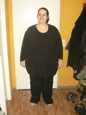 Schwangerschaft mit 120 kg