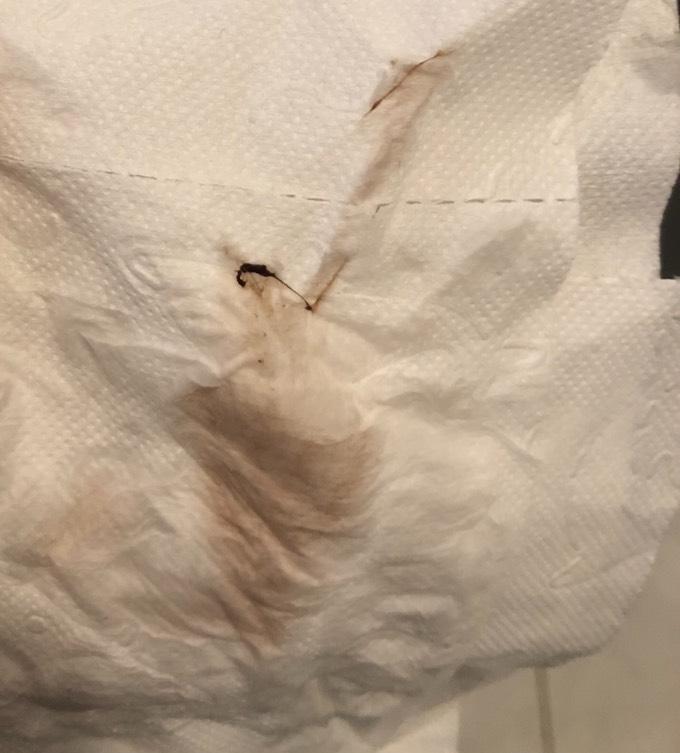 Schmierblutung statt tage