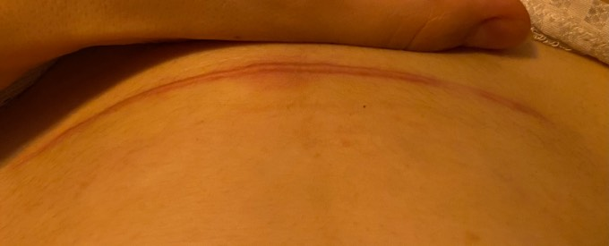 Kaiserschnittnarbe wulstig